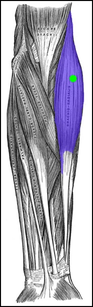 How to treat tennis elbow by massaging the brachioradialis. This image is taken from Wikipedia, and touched up to highlight the brachioradialis and its associated pain pattern.