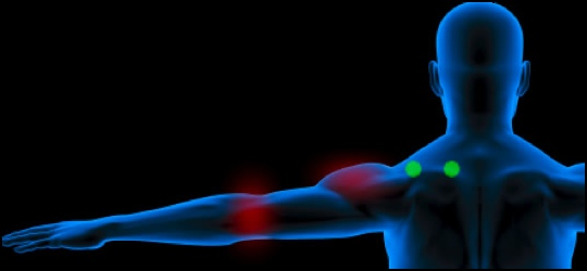 How to treat tennis elbow: Supraspinatus muscle trigger point diagram.