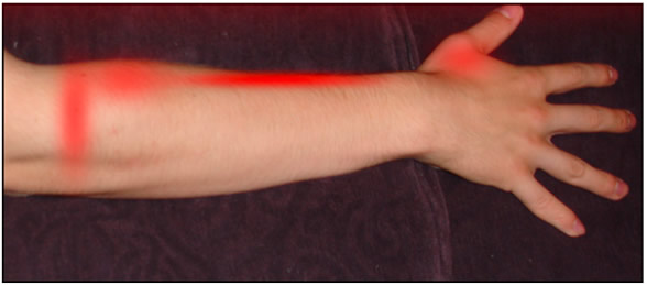 How to treat tennis elbow by massaging the brachioradialis, image 2.