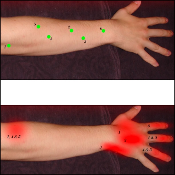How to treat tennis elbow; extensors trigger point diagram.